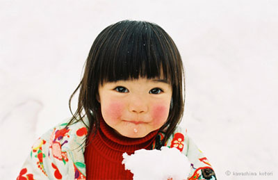 Chăm sóc da mặt của bé đúng cách khi bị nẻ