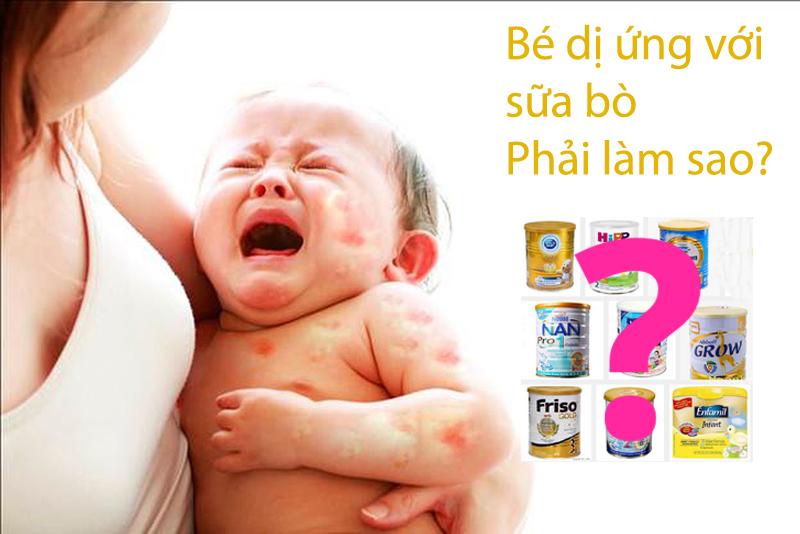 [Gợi ý cho mẹ] TOP 5 loại sữa bột cho bé dị ứng sữa bò tốt nhất