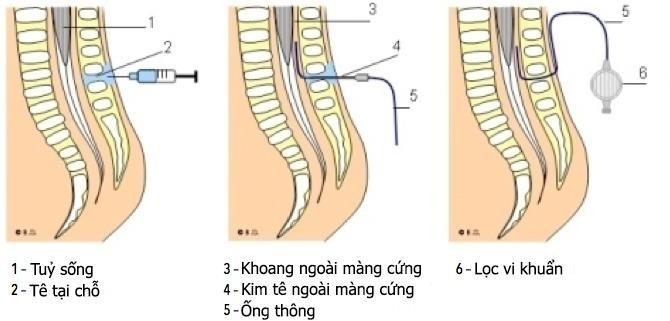 Kỹ thuật gây tê ngoài màng cứng